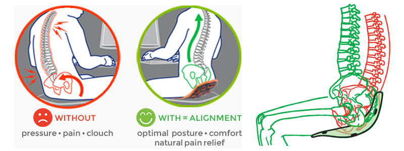 backjoy posture alignment